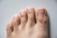 Нога и длинный ноготь toes на белой конкретной предпосылке стоковое фото