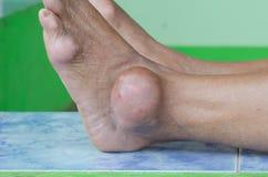 Нога пациента подагры Стоковая Фотография