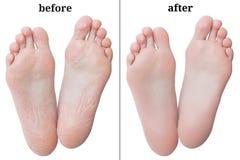 Ноги женщин перед и после слезать стоковое изображение rf