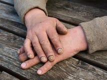 ноготь грибковой инфекции Стоковые Фото