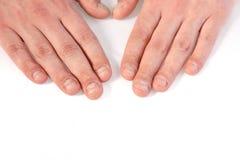 Ногти перста Стоковая Фотография RF