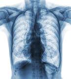 Нормальный рентген грудной клетки старого пациента Вы можете увиденное обызвествление на нервюре, трахее, бронхе Вид спереди Стоковое Изображение RF