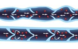 Нормальная вена и varicose вена Стоковые Фотографии RF