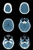 Нормальная голова на развертках CT Стоковое фото RF