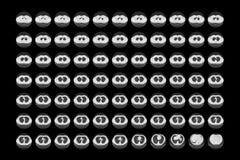 Нормальные легкие на CT Стоковое Фото