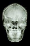 Нормальный азиатский череп людей (тайские люди) Стоковые Изображения RF