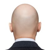 Облыселая головка человека Стоковое Изображение