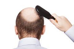 Облыселая головка человека Стоковые Фотографии RF
