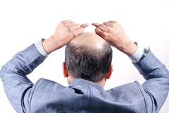 Облыселый бизнесмен с его головой на взгляде скальпа от заднего с wh стоковое фото