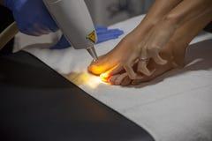 Обработка грибка ногтя лазера Стоковое фото RF