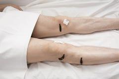 Обработка людей медицинских пиявок Стоковые Фотографии RF