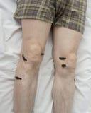 Обработка людей медицинских пиявок Стоковая Фотография