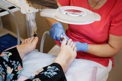 Обработка Podology Podiatrist обрабатывая грибок toenail Доктор извлекает каллюсы, corns и ноготь обслуживаний ingrown оборудован стоковые изображения
