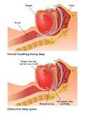 Обструктивное апноэ сна Стоковые Изображения RF