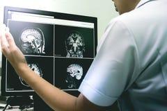 ОБЪЯВЛЕНИЕ с изменением белого вещества CVD стоковые фото