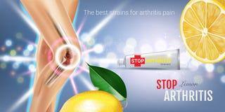 Объявления мази облегчения боли артрита Vector иллюстрация 3d с сливк трубки и выдержкой лимона бесплатная иллюстрация
