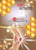 Объявления мази облегчения боли артрита Vector иллюстрация 3d с сливк трубки с выдержкой меда иллюстрация вектора