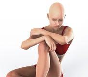 Облыселое выпадение волос женщины Стоковое фото RF