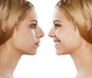 Операция по улучшению формы носа стоковое изображение
