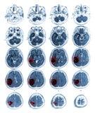 Опухоль мозга выставки мозга MRI на правом париетальном лепестке Стоковые Изображения RF
