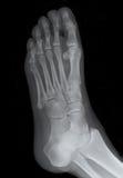 оснуйте рентгеновский снимок ноги правый Стоковые Фото