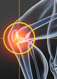 Остеоартрит, тягостное соединение колена, иллюстрация 3D на черной предпосылке стоковые фото