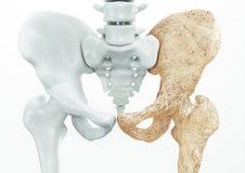 Остеопороз - верхние косточки лимба - перевод 3d Стоковые Изображения RF
