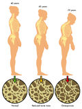 Остеопороз 3 Стоковое Изображение RF
