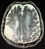 Острый ход рассмотрения mri мозга инфаркта стоковые фото