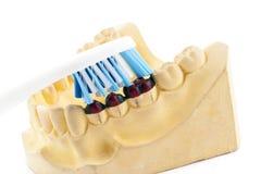 Отливка зубов модели и зубной щетки стоковое фото rf