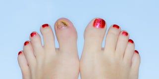 Отполированные пальцы ноги с ушибом Стоковые Фото