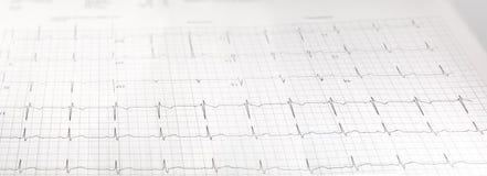 Отчет о медицинской лаборатории ekg испытания сердца Стоковая Фотография RF