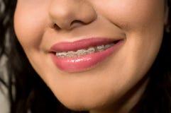 отыскивает вилку зубы Стоковые Изображения RF