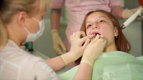 Отделка зубоврачебной завалки Дантист используя специальный шприц с зубоврачебной завалкой сток-видео