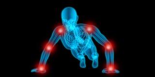 Очень детальная иллюстрация 3D просвечивающего тела человека делая нажим вверх и имея боль в его соединениях иллюстрация вектора