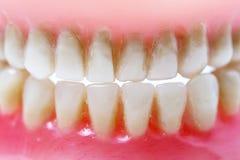 Пакостная зубоврачебная плита Стоковые Фото