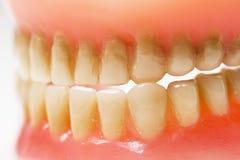 Пакостная зубоврачебная плита Стоковые Изображения