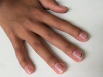 Пакостные длинные ногти имеют семенозачатки сделать больного стоковая фотография