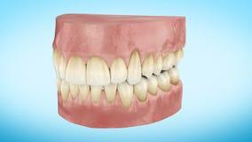 Пакостные желтые зубы поворачивая близко вверх по анимации 3d Канал альфы Ультра HD 4k 3840x2160 акции видеоматериалы