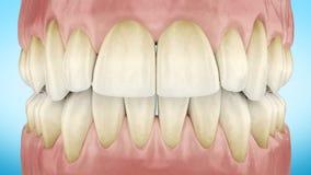 Пакостные желтые зубы сигналят близко вверх по анимации 3d Канал альфы полное HD 1920x1080 сток-видео
