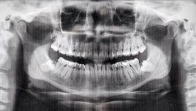 Панорамный взгляд рентгеновского снимка зубов Стоковые Изображения