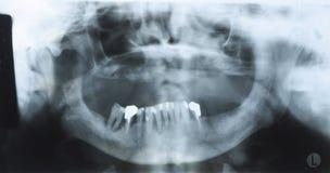 Панорамный зубоврачебный рентгеновский снимок старого человека с некоторыми более низкими зубами Стоковое фото RF