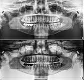 Панорамный зубоврачебный рентгеновский снимок, фиксированные зубы, уплотнение зубоврачебной сортучки, зубы премудрости на горизон стоковое изображение