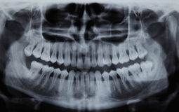 Панорамный зубоврачебный рентгеновский снимок Стоковые Изображения RF