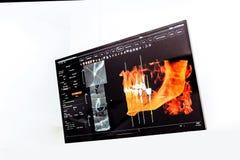 Панорамный и зубоврачебный рентгеновский снимок 3D стоковая фотография rf