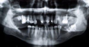 панорамный луч x Стоковая Фотография