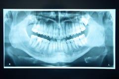 Панорамный рентгеновский снимок зубов Стоковая Фотография RF