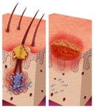 Патогенические бактерии Стоковое фото RF