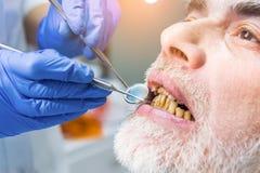 Пациент дантиста рассматривая, конец вверх Стоковая Фотография