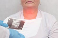 Пациент на докторе с заболеванием тиреоида узелкового зоба, конец-вверх, медицинский, воспаление стоковые изображения rf